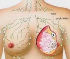 parabenos cáncer de mama