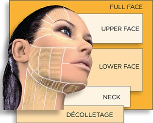 ultherapy facial treatments