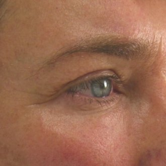 Ultherapy Brow Before
