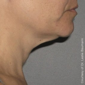 Ultherapy Neck After