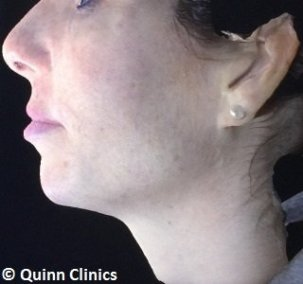 after-chin-augmentation-dermal-fillers