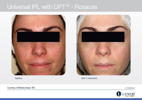 Latest Laser Ipl Treatment For Rosacea Quinn Clinics