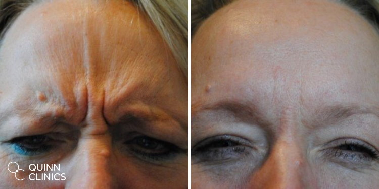BOTOX frown results