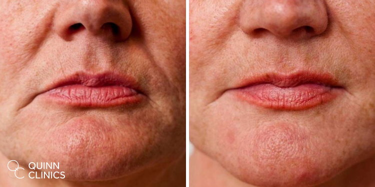 before and after dermal fillers Bristol