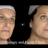 Ultherapy Filler Results