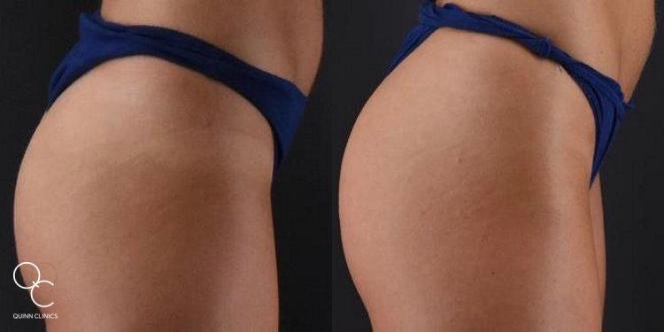 EMSCULPT 'Bum Lift' Before & After Results