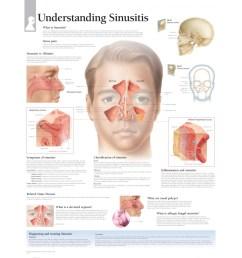 sinus pain sinusitis vs rhinitis skull skun corona norma classification of sinusitis sinusitis reviratory mucosa symptoms of sinusitis [ 2000 x 2000 Pixel ]