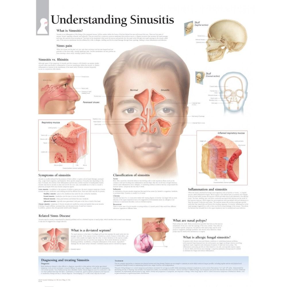 medium resolution of sinus pain sinusitis vs rhinitis skull skun corona norma classification of sinusitis sinusitis reviratory mucosa symptoms of sinusitis
