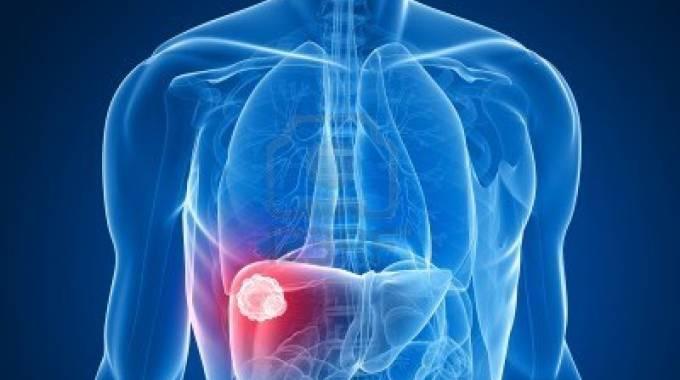 Epatite C, con due farmaci in tandem il fegato torna come nuovo