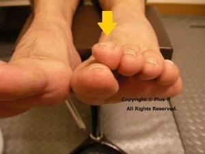 胼胝・浮きゆび・外反母趾の複合トラブル。