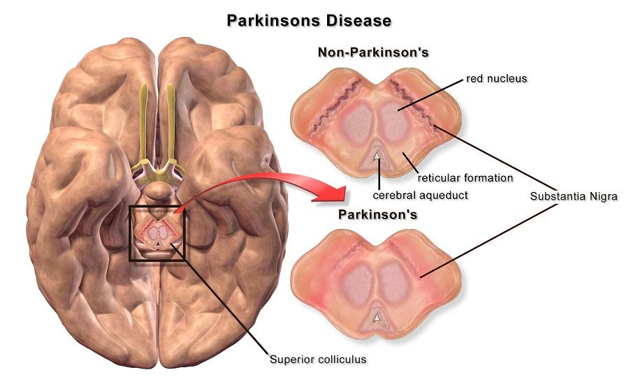 Parkinson e popolazioni neuronali