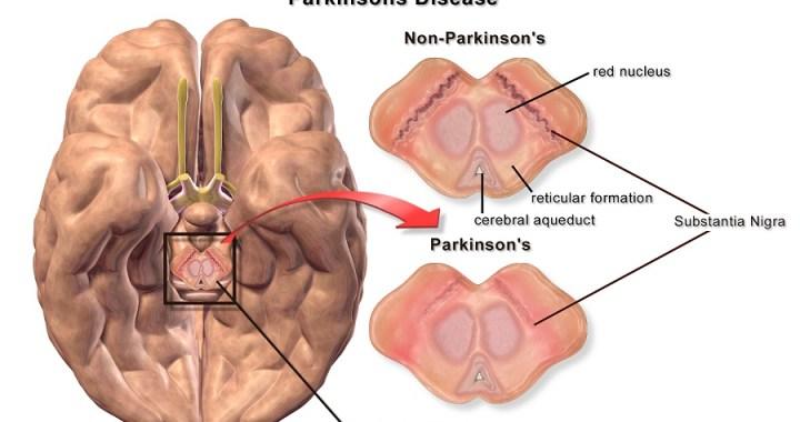 Parkinson e popolazioni neuronali associate