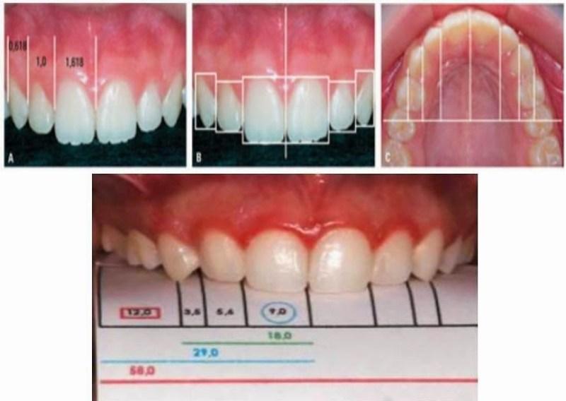 Fibonacci na dentição humana