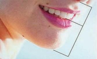 Fibonacci na denticao 2