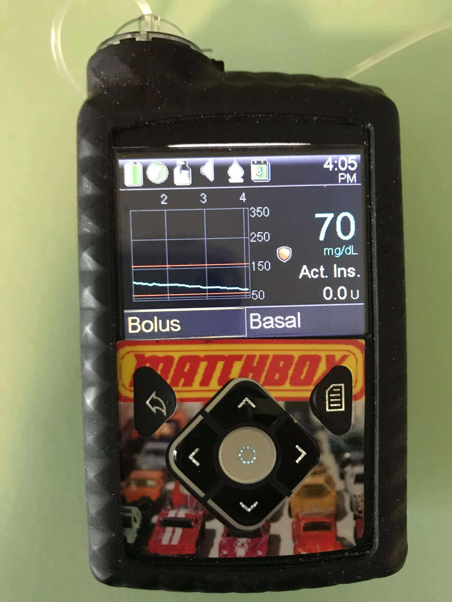 Review Of The Medtronic 630g Insulin Pump Radiabetes