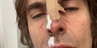 liam-gallagher-pateix-un-accident-d'helicopter-i-es-trenca-el-nas