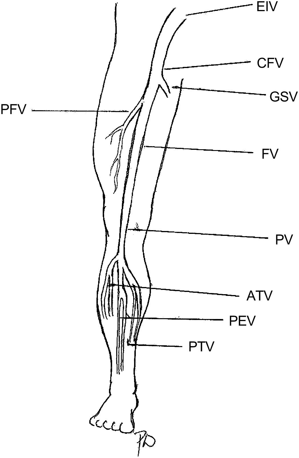 Ultrasound Evaluation Of The Lower Extremity Veins