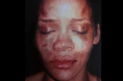 Rihanna's face after boyfriend Chris Brown attacked her-1732203