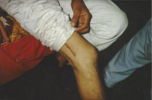 Santo Antonio Redonder, injured in gang-related violence