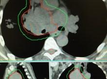 Contours d'une masse pulmonaire cancéreuse