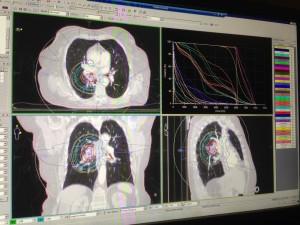 Plan de radiochirurgie pulmonaire