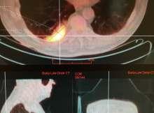 TEP scan d'un cancer du poumon