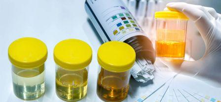 Белок в моче – грозный симптом, требующий детальной диагностики