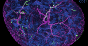 Cellular connections found between nervous and immune systems