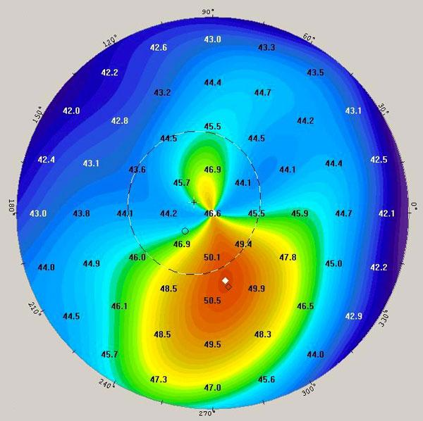 Topografía corneal