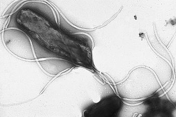 Electron micrograph of H. pylori possessing mu...