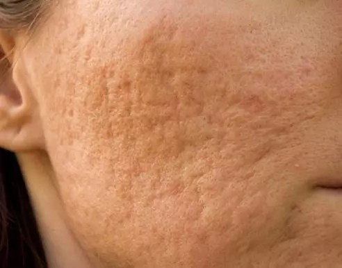 Acne Scars Removing Home Remedies Rain Of Beauty
