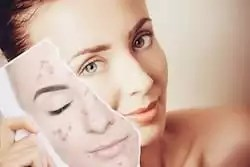 Home remedies can help you remove blemishes naturally