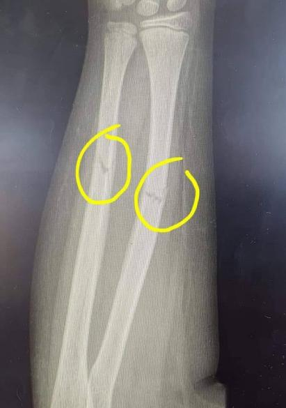 broken bones in arm shown in xray