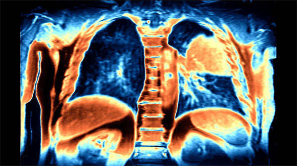 Krebs-Krankheit12321