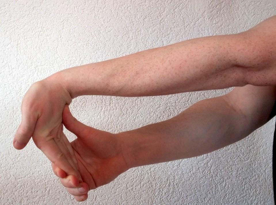 Dehnen bei Handgelenkschmerzen linker Arm (Bild: Copyright Benjamin Blessing).