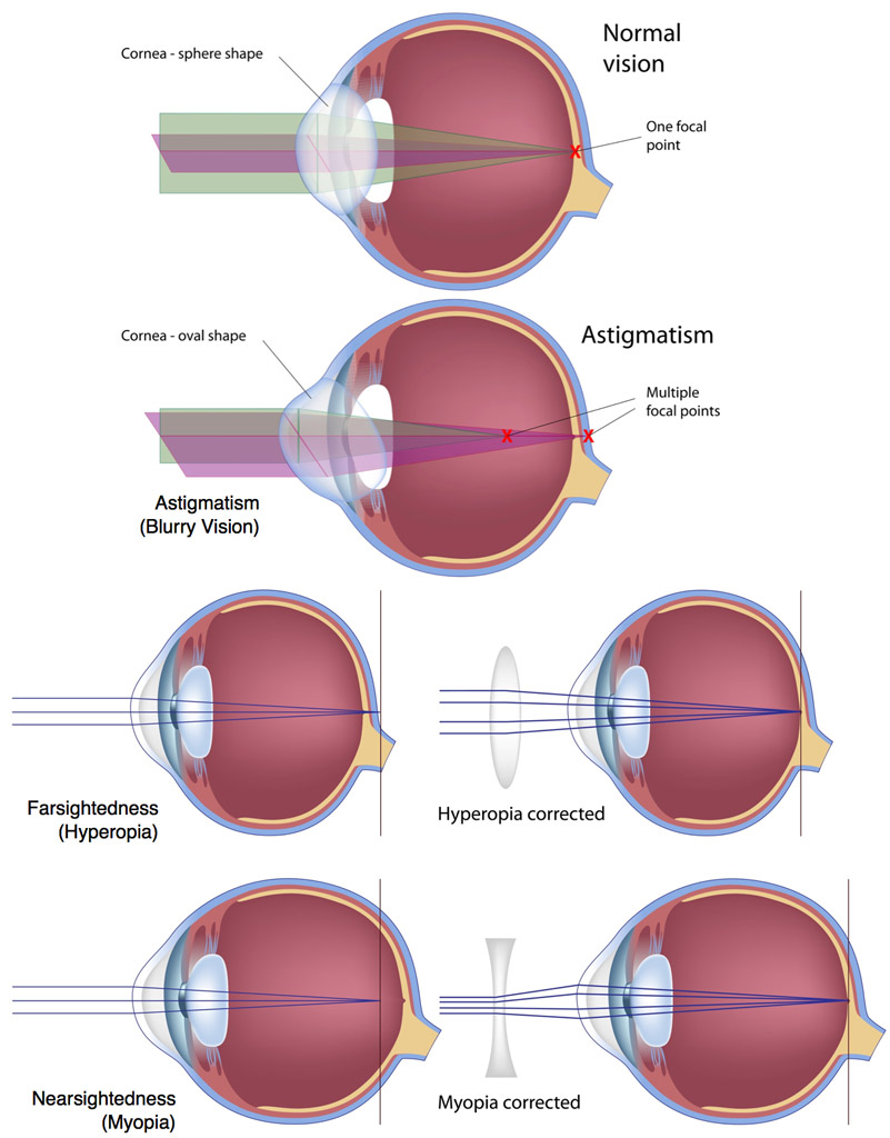 hight resolution of lasik eye surgery outpatient procedure by fort worth eye associates