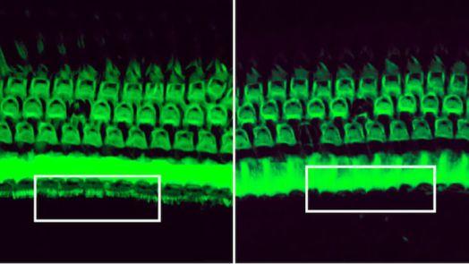 CRISPR Therapy Can Prevent Hearing Loss