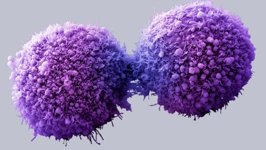 Stress Can Speed Up Pancreatic Cancer