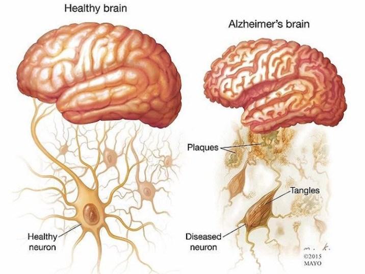 Brain - Genetic Risk Factor of Alzheimer's Disease