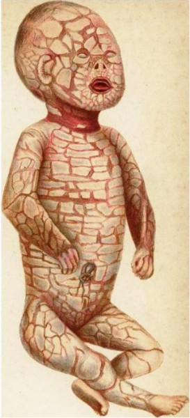 Harlequin fetus