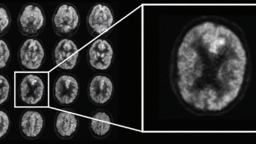 Artificial Intelligence predict alzheimer's disease