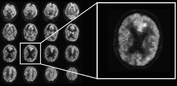 AI Predict Alzheimer's