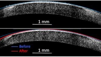 Molecular surgery to reshape tissue