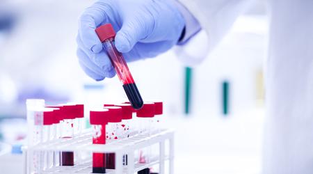medical laboratory technician degree