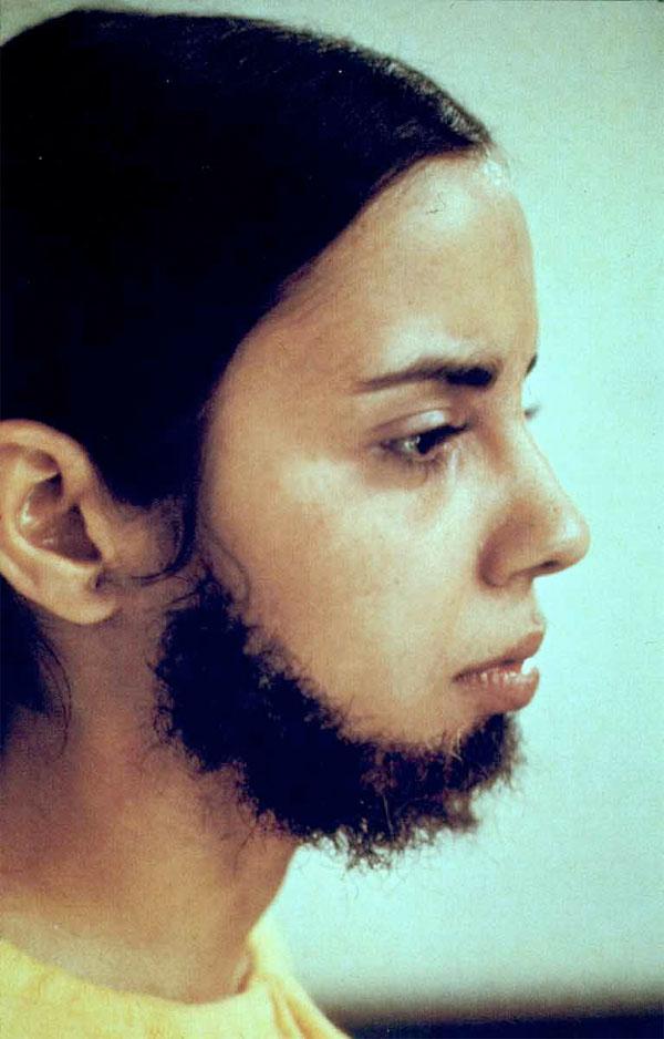 Facial Hair Transplan