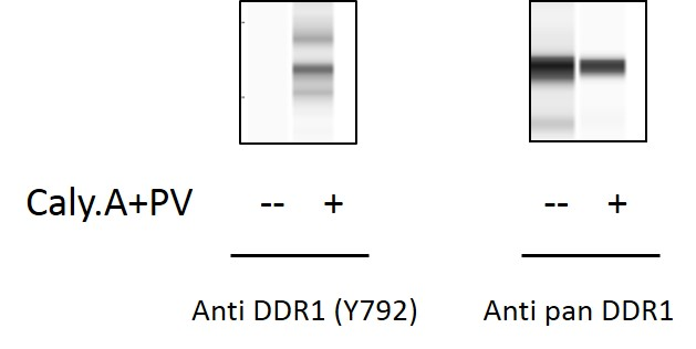 DDR1 (Tyr792) and Total DDR1 ELISA Kit