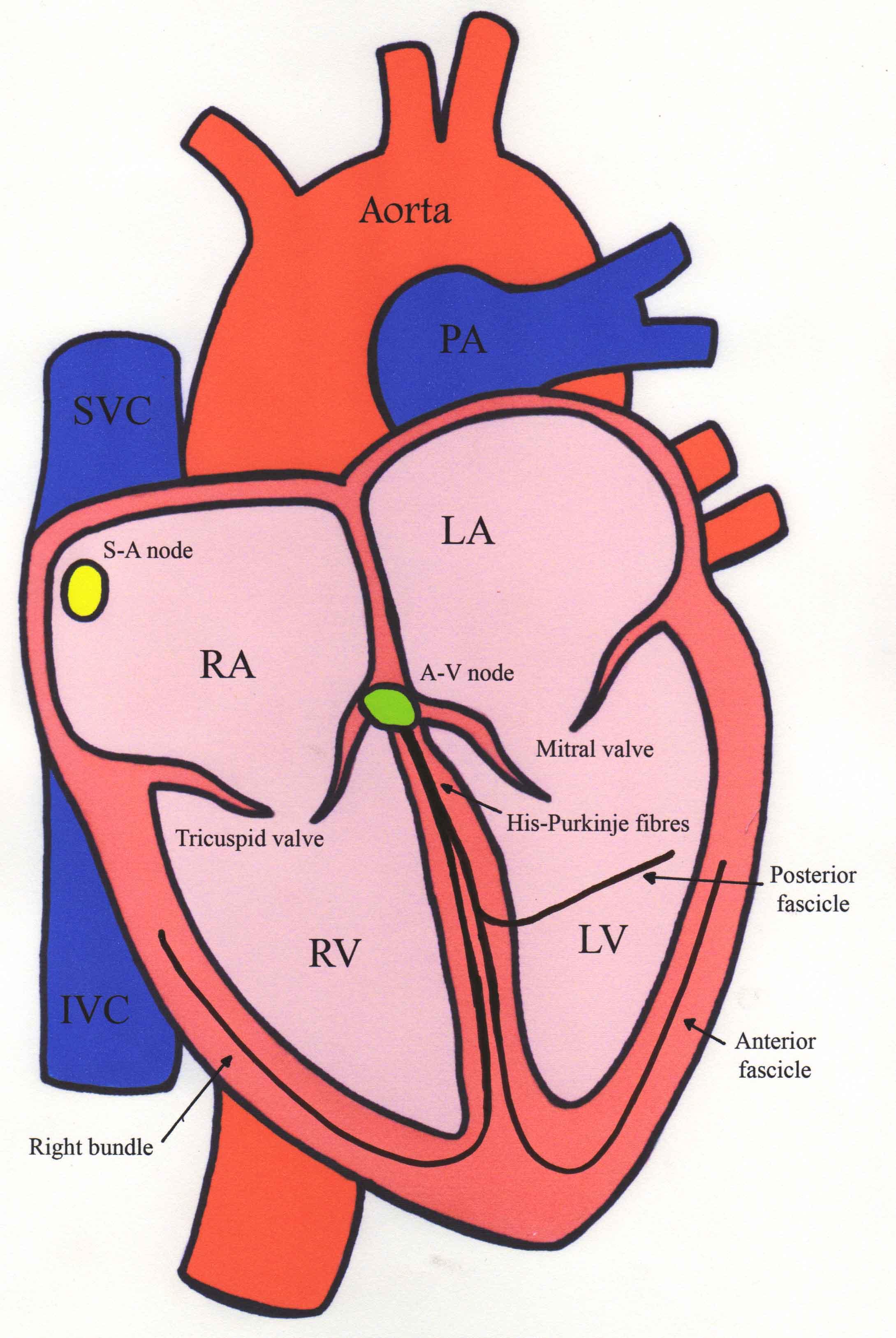 heart diagram nodes hyundai santa fe ecu wiring supraventricular tachycardia