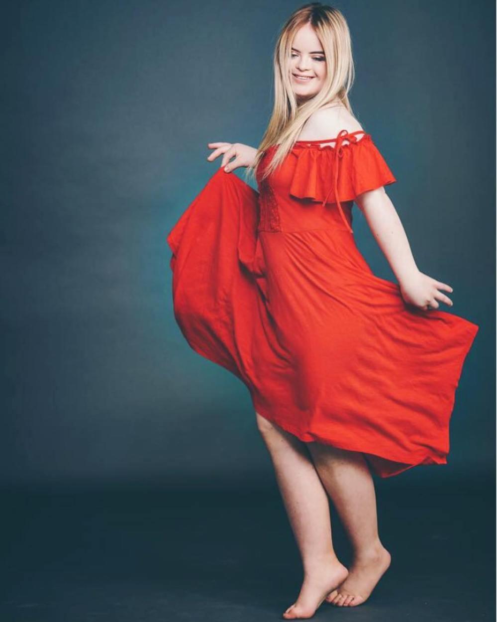 Дівчина з синдромом Дауна стала обличчям косметичної марки: фото незвичайної моделі