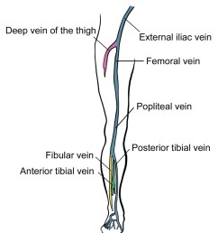 deep vein thrombosis [ 1000 x 1140 Pixel ]