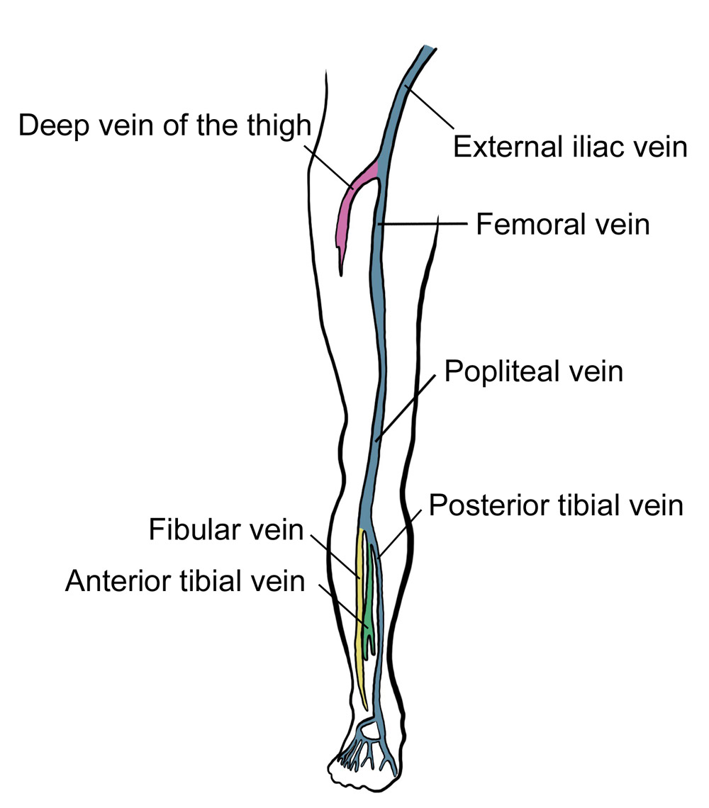 hight resolution of deep vein thrombosis